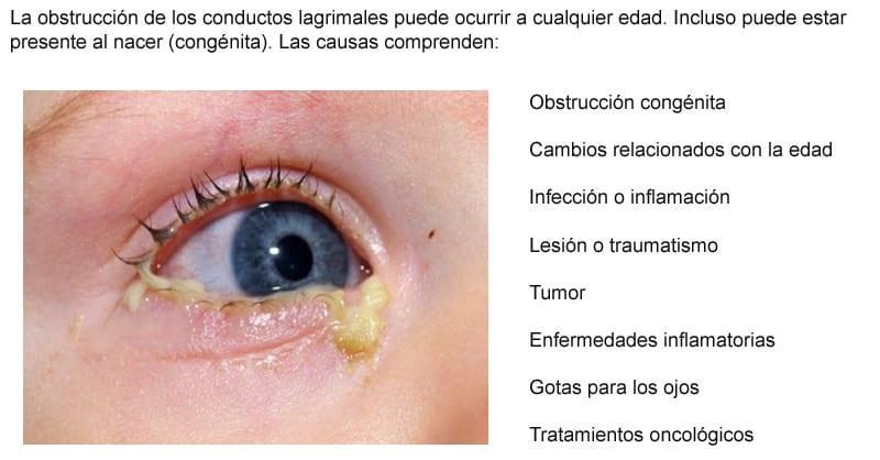 infección ocular o conducto lagrimal obstruido